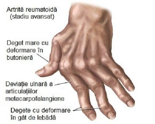 artrite articulații