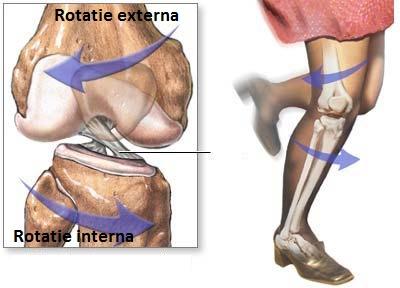 Genunchii dureroși când coboară pe scări Ruptura de ligamente - amatours.ro