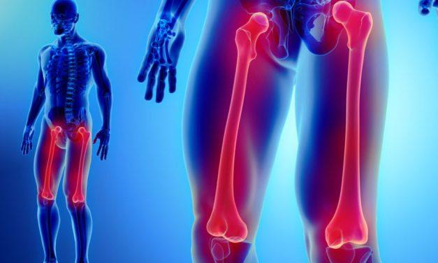 În ce înseamnă dureri ascuțite în coapsa stângă?