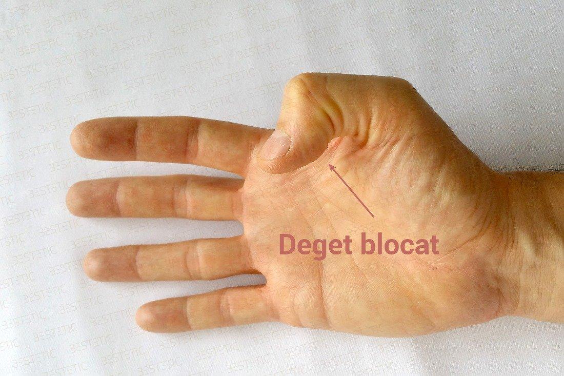 articulații rigide în tratamentul degetelor