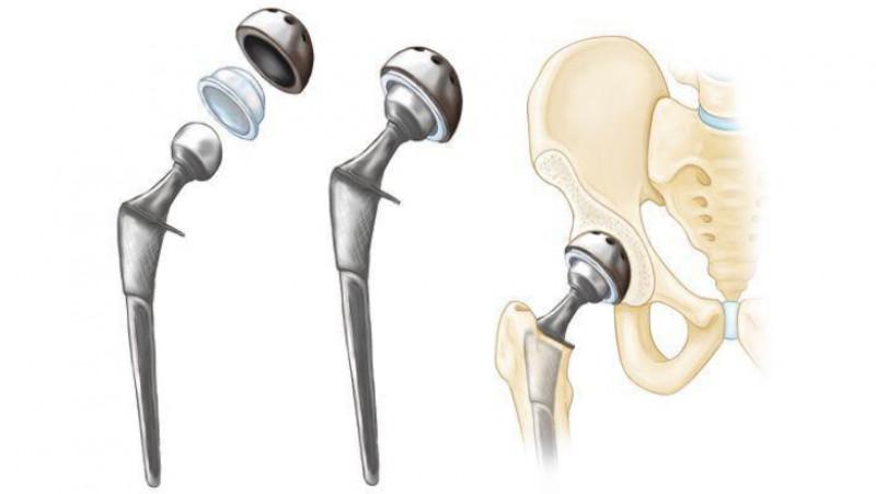 viață adevărată și de șold fără durere medicamente pentru tratamentul bursitei genunchiului