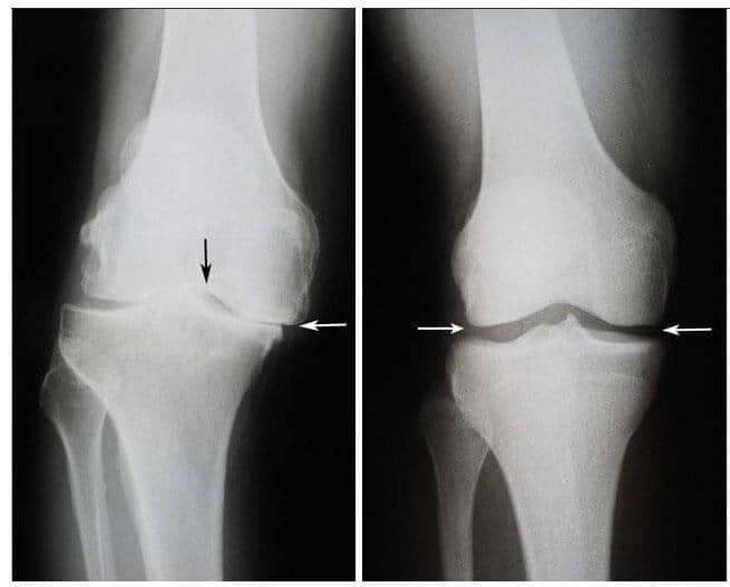 se ridică cu artroza articulației articulațiile de balansare rănite