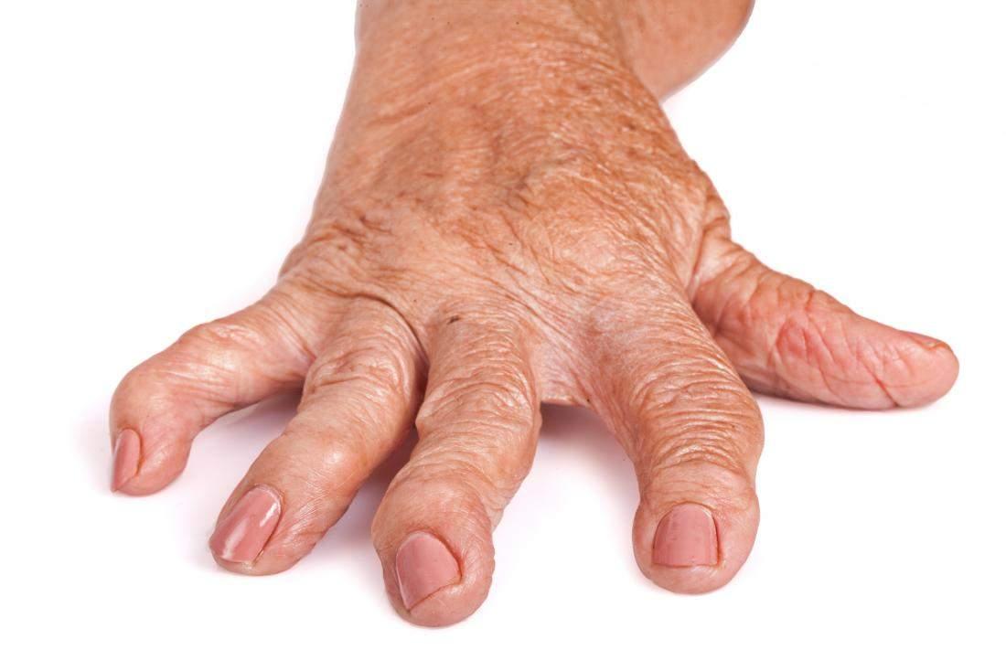 tratamentul artrozei osoase inflamația ligamentelor tratamentului articulației cotului