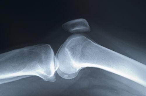 artroza articulațiilor tarsale metatarsiene