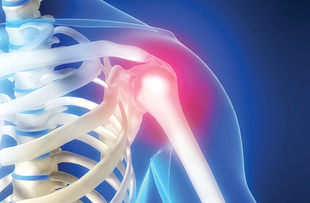 dureri de umăr după volei dureri articulare 18 ani