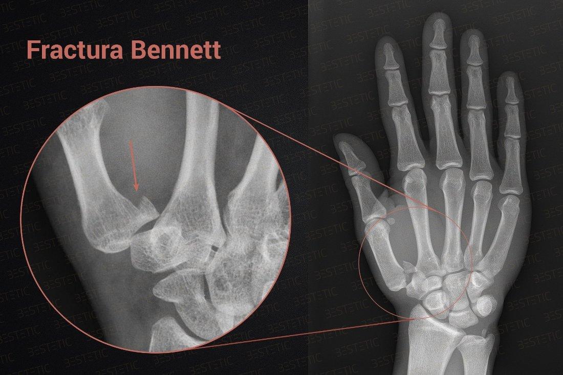 Tratamentul fracturilor articulare la încheietura mâinii durere rătăcitoare în articulațiile și mușchii brațului