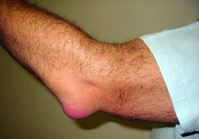 tratamentul articulației genunchiului fabella leziune a genunchiului fracturii femurale