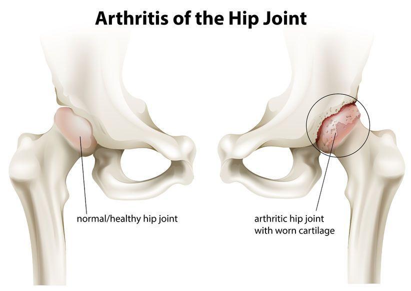 durere pe partea medială a genunchiului cu durere în articulațiile mâinii