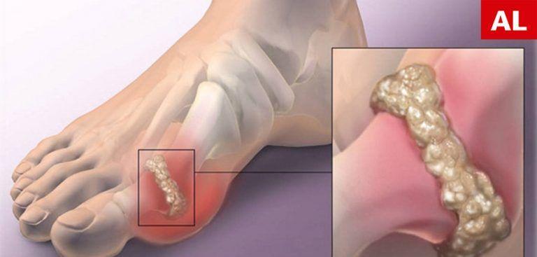 durere acută în articulația șoldului dacă articulația sciatică doare