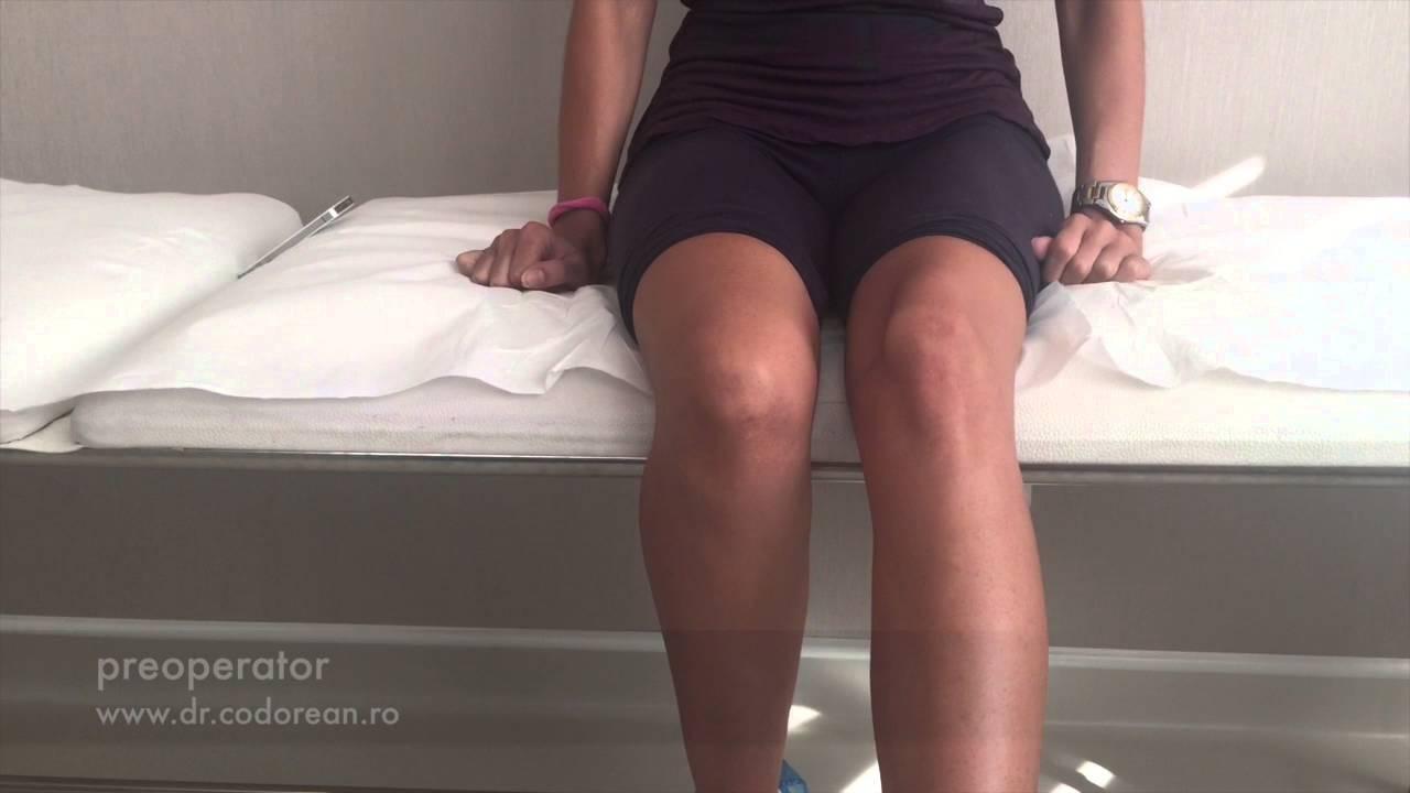 migdale pentru boala articulară remedii pentru durerea în articulațiile picioarelor