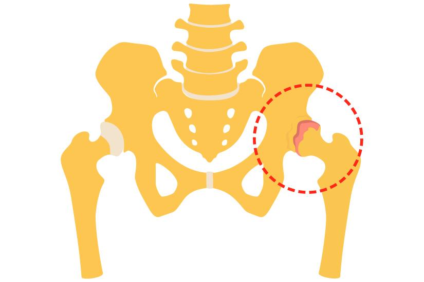 inflamația articulară la un miel