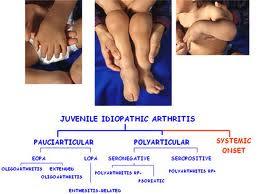 boli articulare acesta dureri ale articulației șoldului și picioarelor