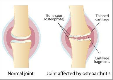 artroza arcadelor articulațiilor vertebrale