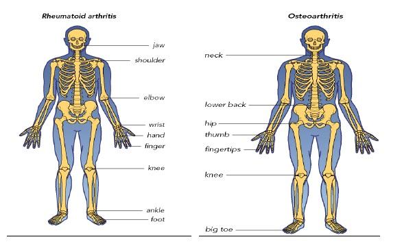 articulațiile tratamentului membrelor superioare unguent pentru osteocondroză recenzii ale coloanei vertebrale