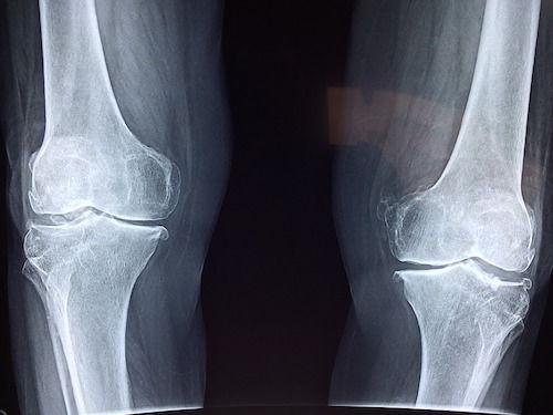 calcifierea ligamentelor tratamentului articulației șoldului glucosamină condroitină 1500