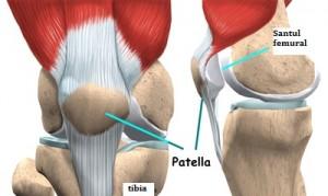 tratamentul artrozei femurale dureri la nivelul brațului și articulațiilor încheieturii