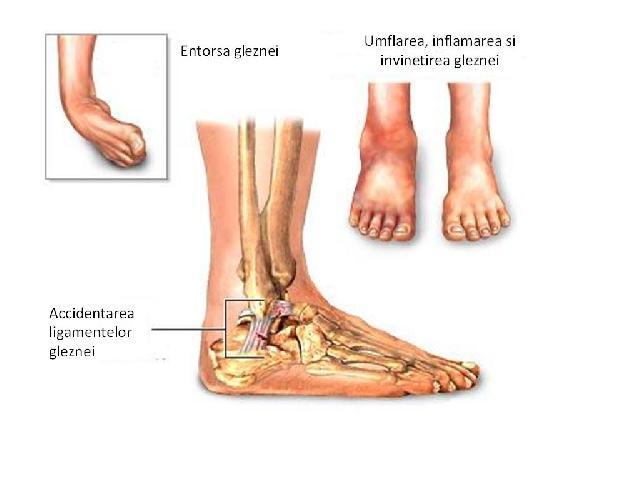 artroza deformantă a articulațiilor mici ale piciorului