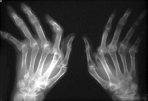 artrita tratamentul alimentar cu artroză coxartroza tratamentului articulației șoldului teraflex
