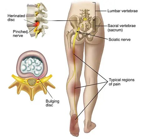 ruperea parțială a ligamentelor genunchiului