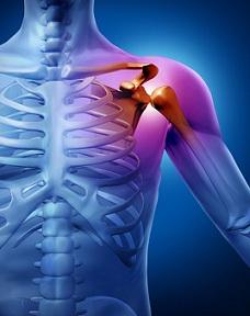 artroza condililor genunchiului