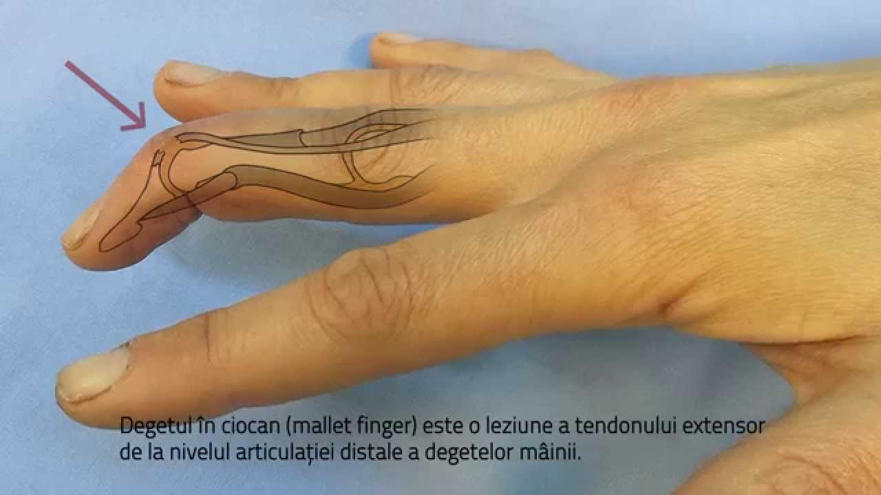 Articulația pe degetul mijlociu doare. Artroza mainilor: de ce apare si cum se trateaza