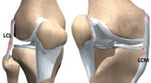 entorsa a ligamentului lateral intern al genunchiului durere cu inflamația articulației șoldului