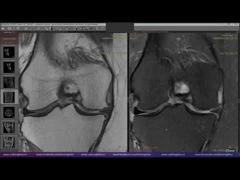 inflamație ureaplasmoză articulară