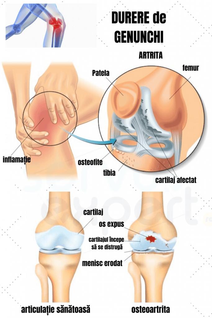 articulația genunchiului doare și creste