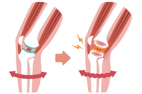 tratament de îngroșare articulară articulația doare pe vreme