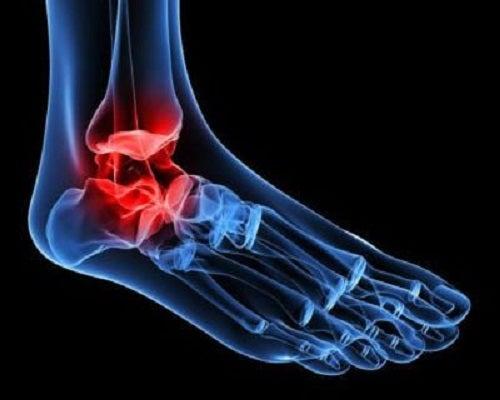 ligamente ale leziunii ligamentului articulației genunchiului durere în plămâni