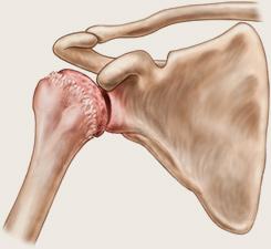 durere foarte severă în două articulații