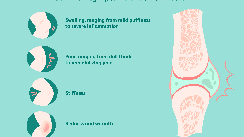 yurevets tratament articular dureri articulare difuze