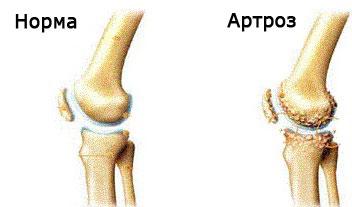 artroza secundară a genunchiului medicamente nesteroidiene în tratamentul osteocondrozei