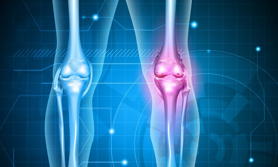 medicamente și unguent pentru durerile articulare cum se poate reduce durerea în articulațiile șoldului