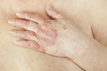 medicamente pentru recenzii ale artrozei genunchiului dureri nervoase sciatice înțepate în articulația genunchiului