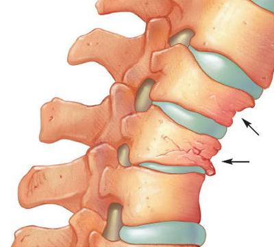 dureri de genunchi și articulații boli la nivelul articulațiilor genunchiului