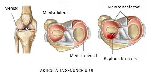 boala menisc faceți clic pe articulațiile genunchiului ce să faceți