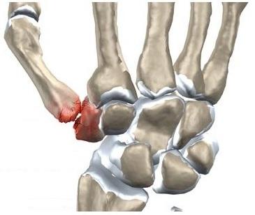 degetele după artrită