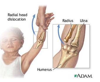 vătămarea cotului uman cu dureri articulare pe care medicul