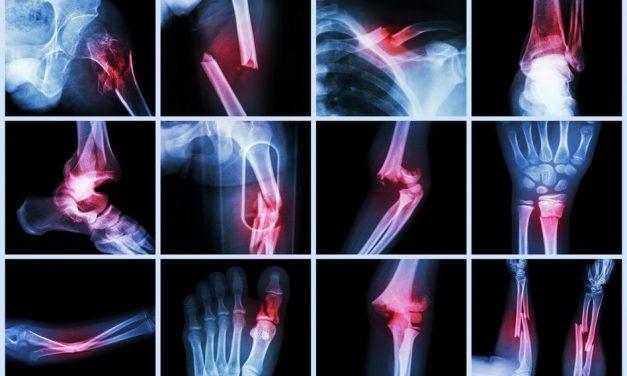 bump pe tratamentul articulației genunchiului inflamație pe articulațiile degetelor
