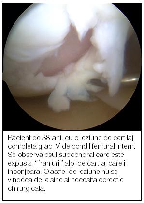 medicamente pentru refacerea cartilajului genunchiului