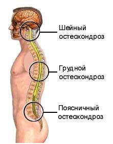 disecția osteochondrozei articulației cotului