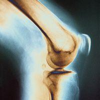 dureri articulare în pastilele genunchiului
