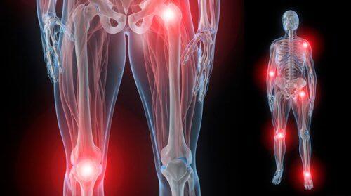 articulațiile sunt foarte dureroase și dureroase dureri de genunchi fără răni