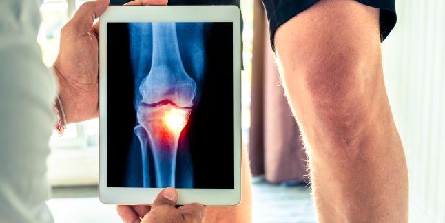 Simptomele de afectare a tendoanelor genunchiului recenzii ale tratamentului artrozei genunchiului