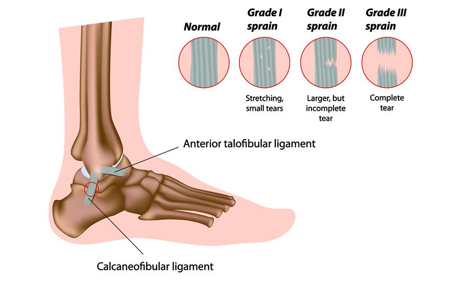 leziuni ale ligamentelor de gleznă