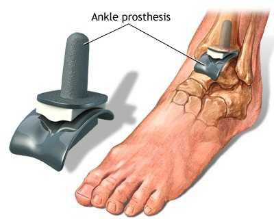 Este posibilă încălzirea artrozei gleznei