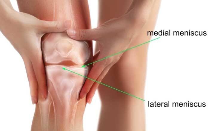 tratamentul artroscopic al afectării meniscului la genunchi artroza articulațiilor de pe degete