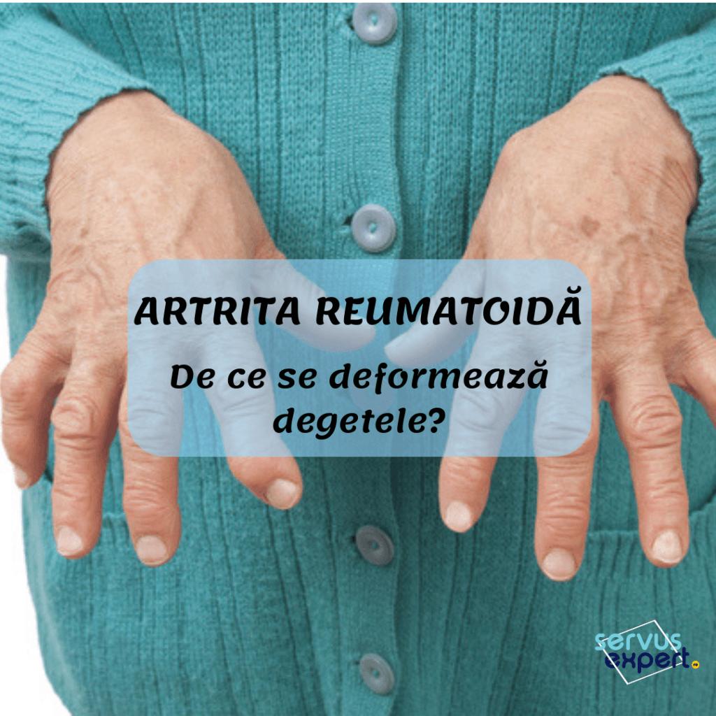 infecția bolii articulare câte grade are artroza genunchiului