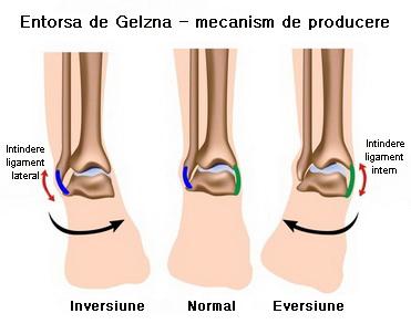 artroza progresivă a gleznei